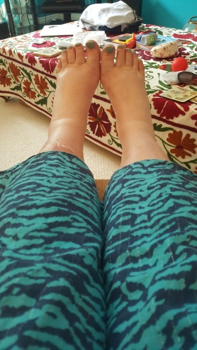 Swollen feet and legs